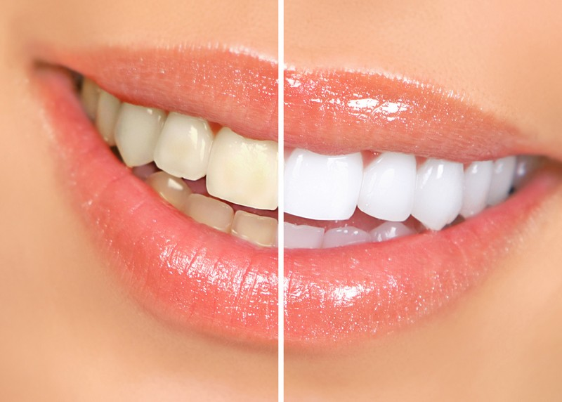 Teeth Whitening Sparta, NJ